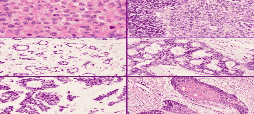Breast Carcinoma Types Staging Diagnosis Treatment