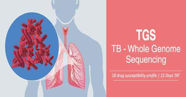 Tuberculosis - Diagnosis and treatment